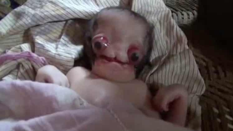 Ребенок-мутант из Индии. Господи, страшно-то как! Видео