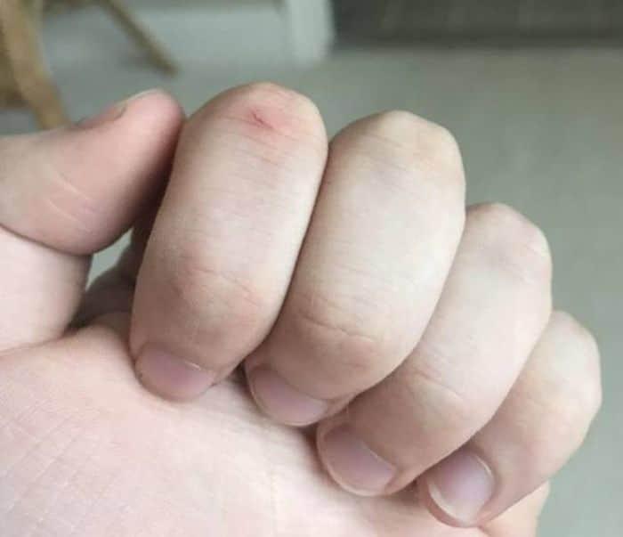 порез на пальце