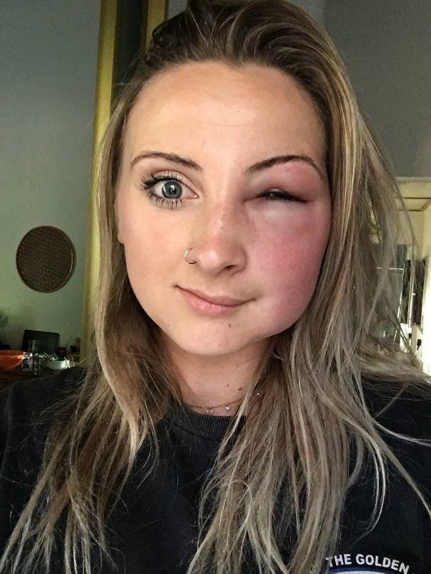 блондинка с заплывшим глазом