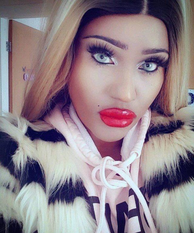 женщина с огромными губами