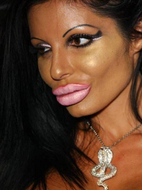 девушка увеличила губы