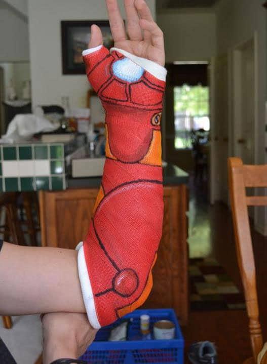 Рука в гипсе обтянута тканью