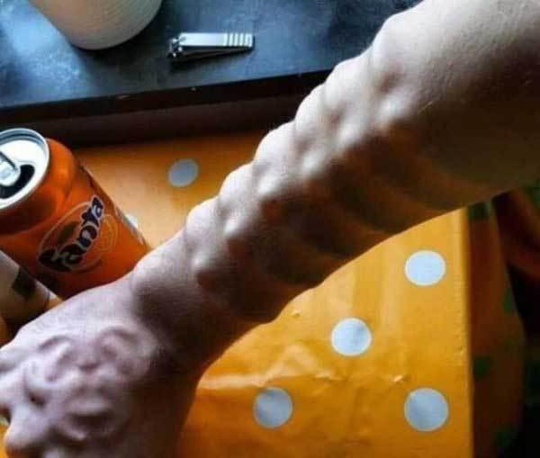 рука с имплантами под кожей