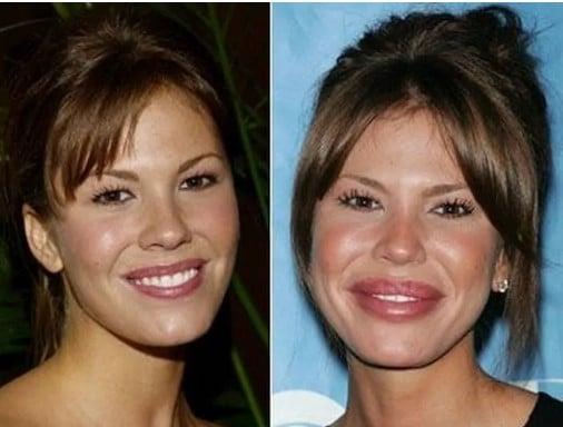 женщина до и после пластических операций