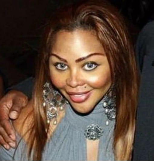 женщина после пластики лица