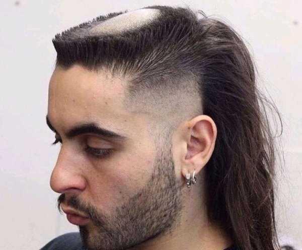 парень с выстриженной головой