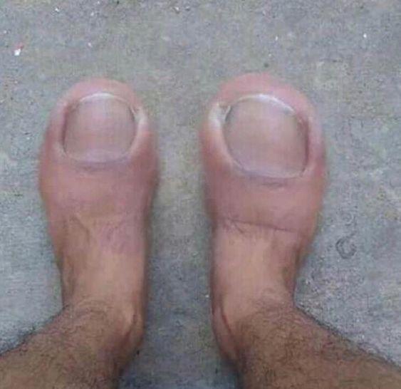странные ноги