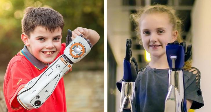 мальчик и девочка с протезами рук